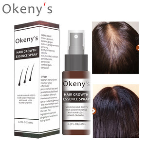 Okeny's Ginger Hair Growth Essence Spray 20ml Grow Restoration Bread Oil Serum for Man Woman Anti Hair Loss Prevent Baldness - Vipbeautycompany