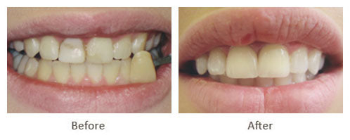 Crowns & tooth whitening