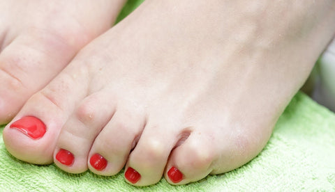 Hammertoes-woman-feet