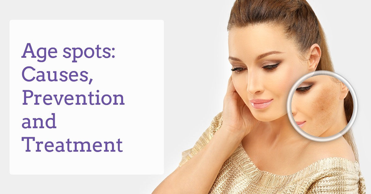 Age-spots-Causes-Prevention-&-Treatment-dermaessentia