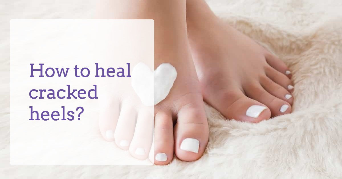 how-to-heal-cracked-heels