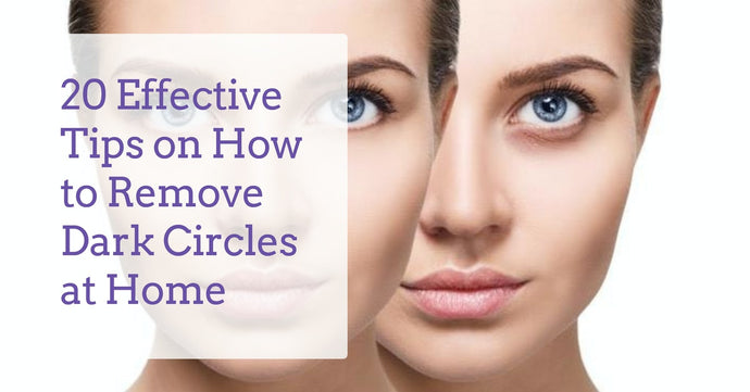 20 Effective Tips on How to Remove Dark Circles at Home