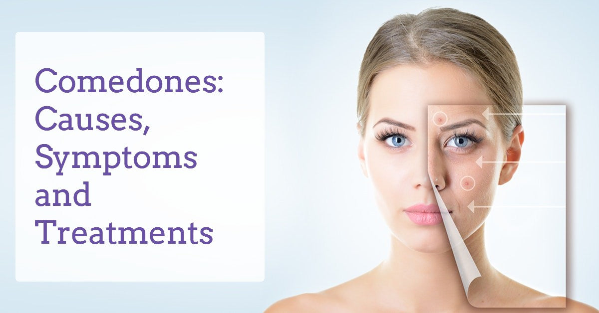 comedones-causes-symptoms-and-treatment-derma