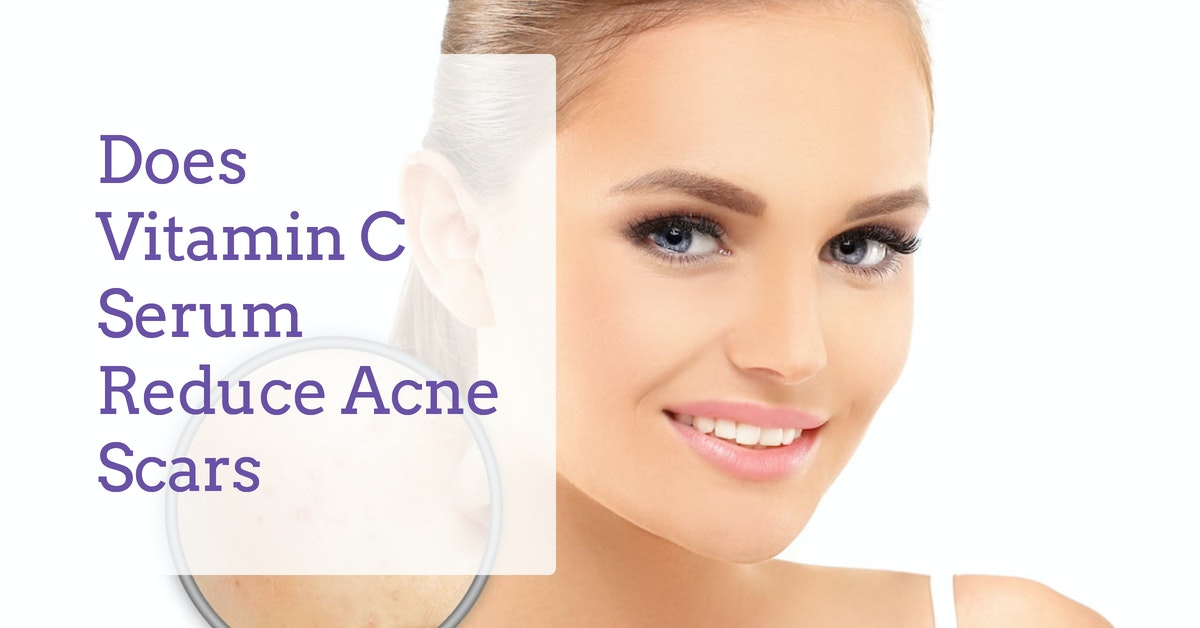 How Does Vitamin C Serum Help To Reduce Acne Scar Derma Essentia