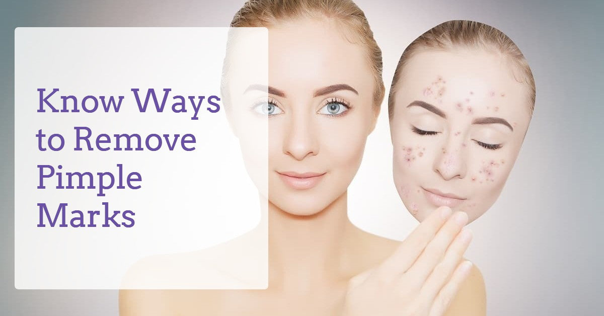 Ways-to-Remove-Pimple-Marks-derma