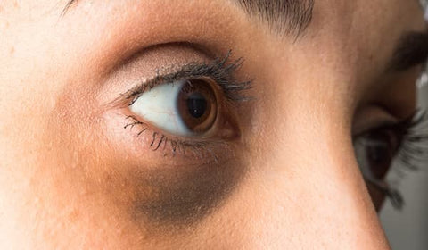 Brown-pigmented-dark-circles