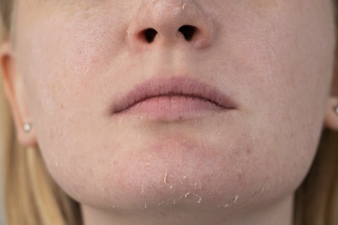 Now, what is dry skin?