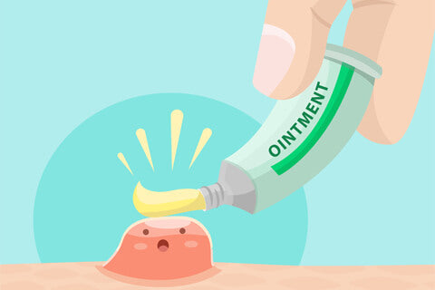 Try medicated prescribed ointments