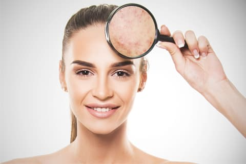 What is Derma Essentia acne gel Recommended For