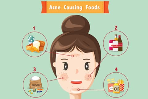What to eat and what to avoid to get clear skin