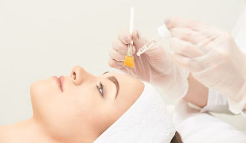 Chemical peel for acne scare