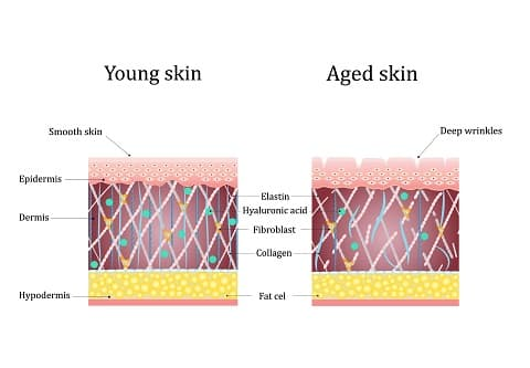 difference-betwwen-fine-lines-and-wrinkles-derma-essentia