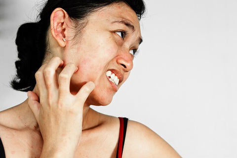 home-remedies-for rashes-dermaessentia