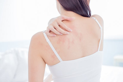 reasons-for-itchy-skin-dermaessentia