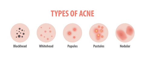 types-of-blackheads-derma