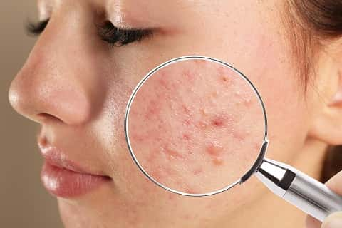 uses-of-zinc-for-skin-derma-essentia