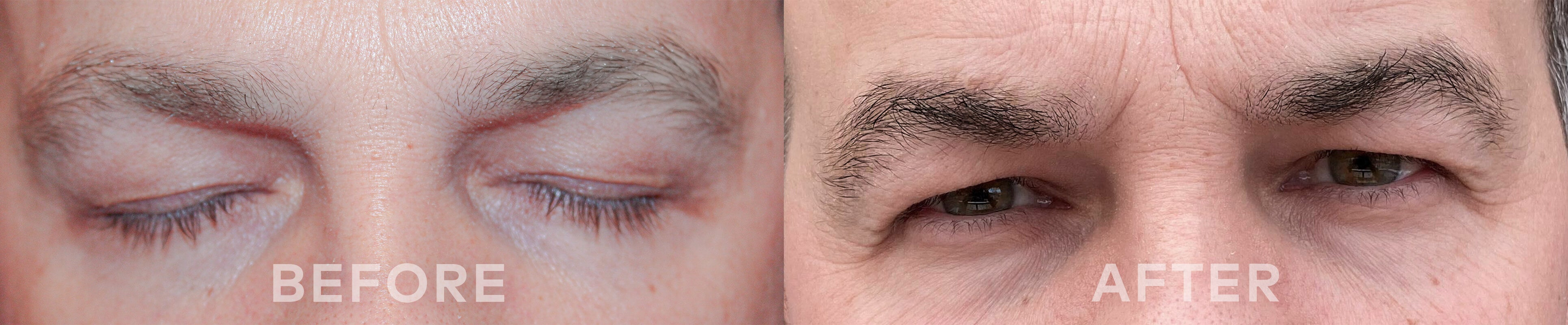 before and after using ADOREYES eyebrows growth serum