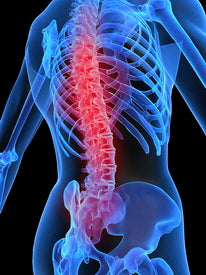 pain from improper posture