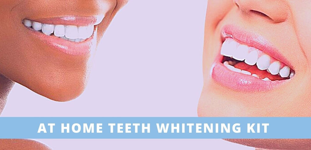Image-at-home-teeth-whitening-kit