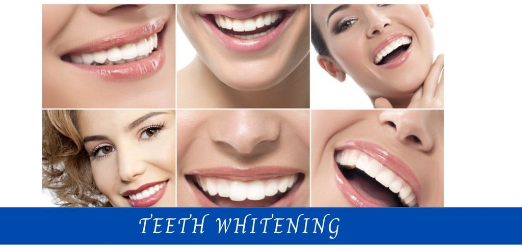 Image-teeth-whitening