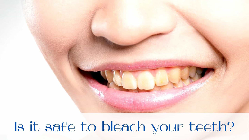 image-Tooth-whitening