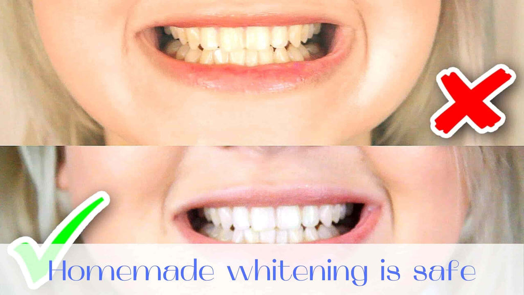 image-homemade-teeth-whitening