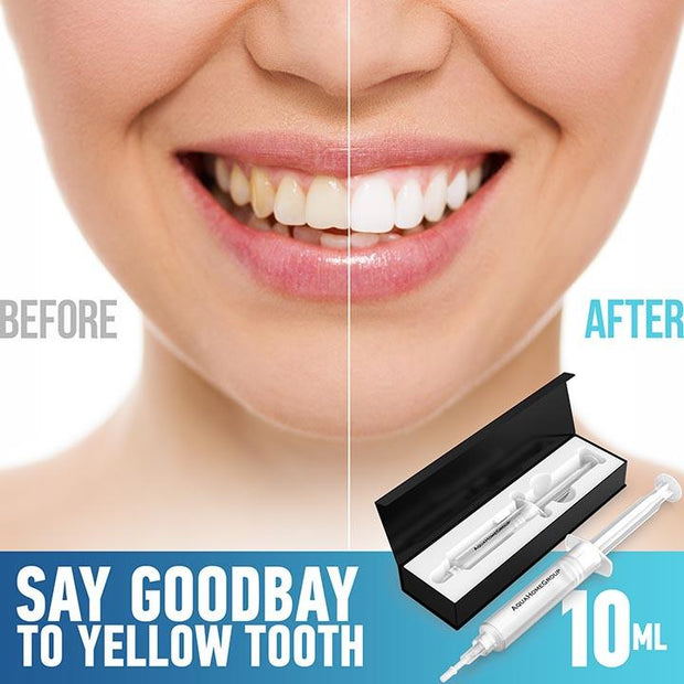 Whitening Teeth Gel - aquahomegroup