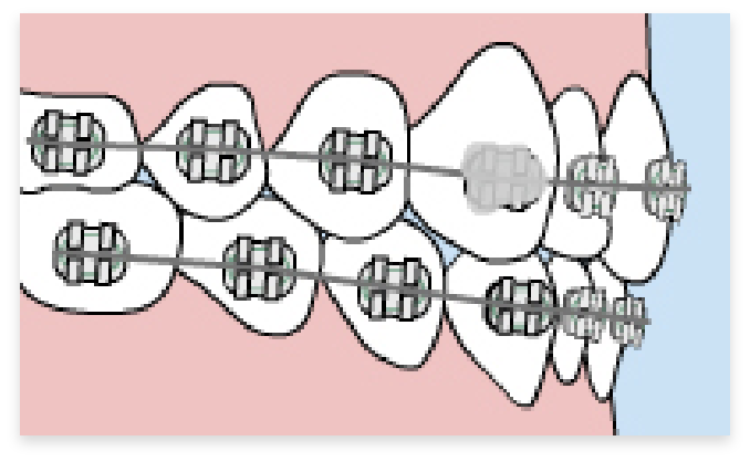graphic of loose bracket in braces