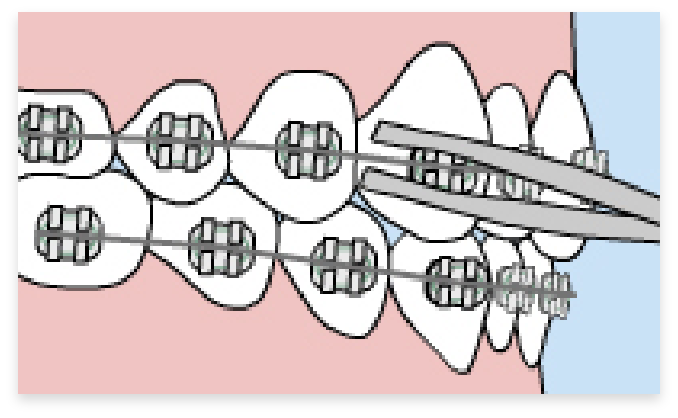 graphic of loose wires in braces in mouth