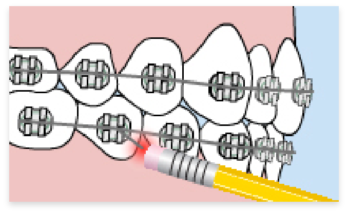 graphic of braces poking into gums of mouth
