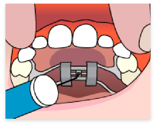 graphic of step 2 of palatel expander process