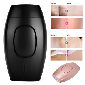 Painless Laser Hair Removal Device
