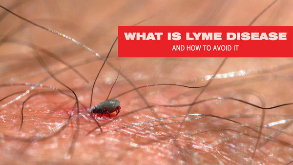 What Is Lyme Disease and How to Avoid It