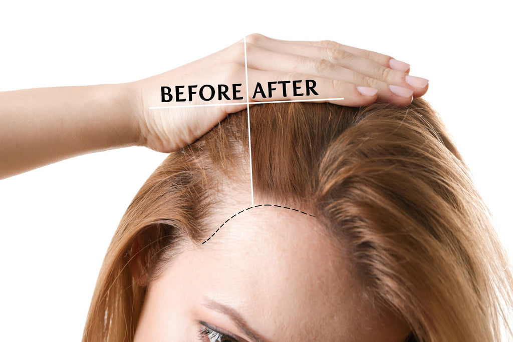 finasteride before and after hair treatment woman