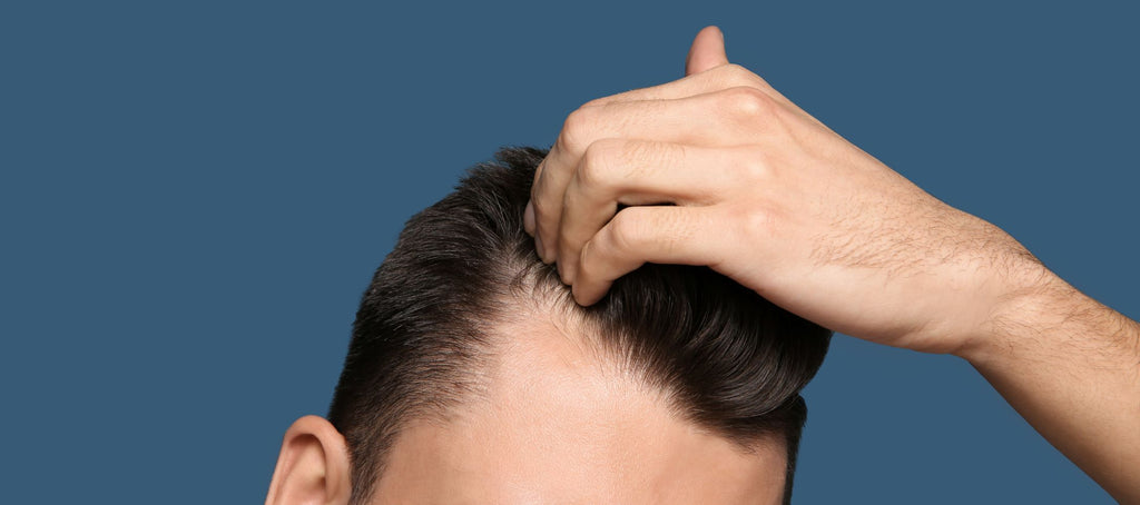 male pattern hair loss due to finasteride not working