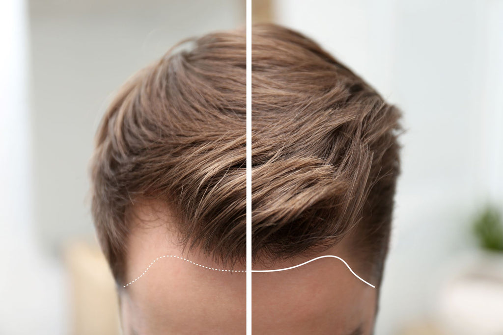 androgenetic alopecia type in men before and after