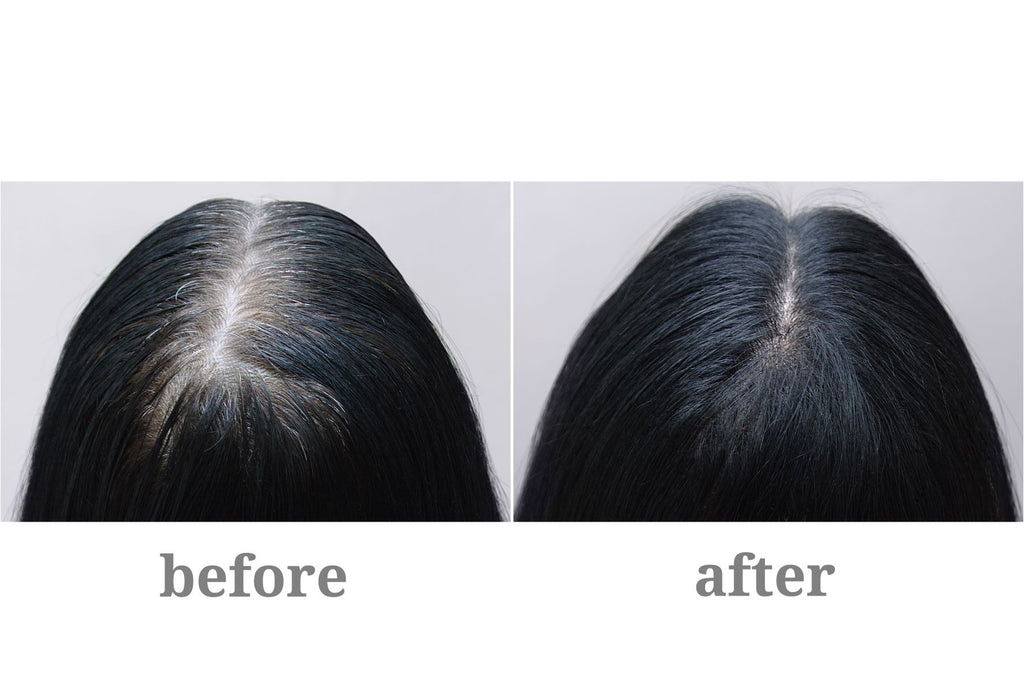 finasteride before and after picture woman