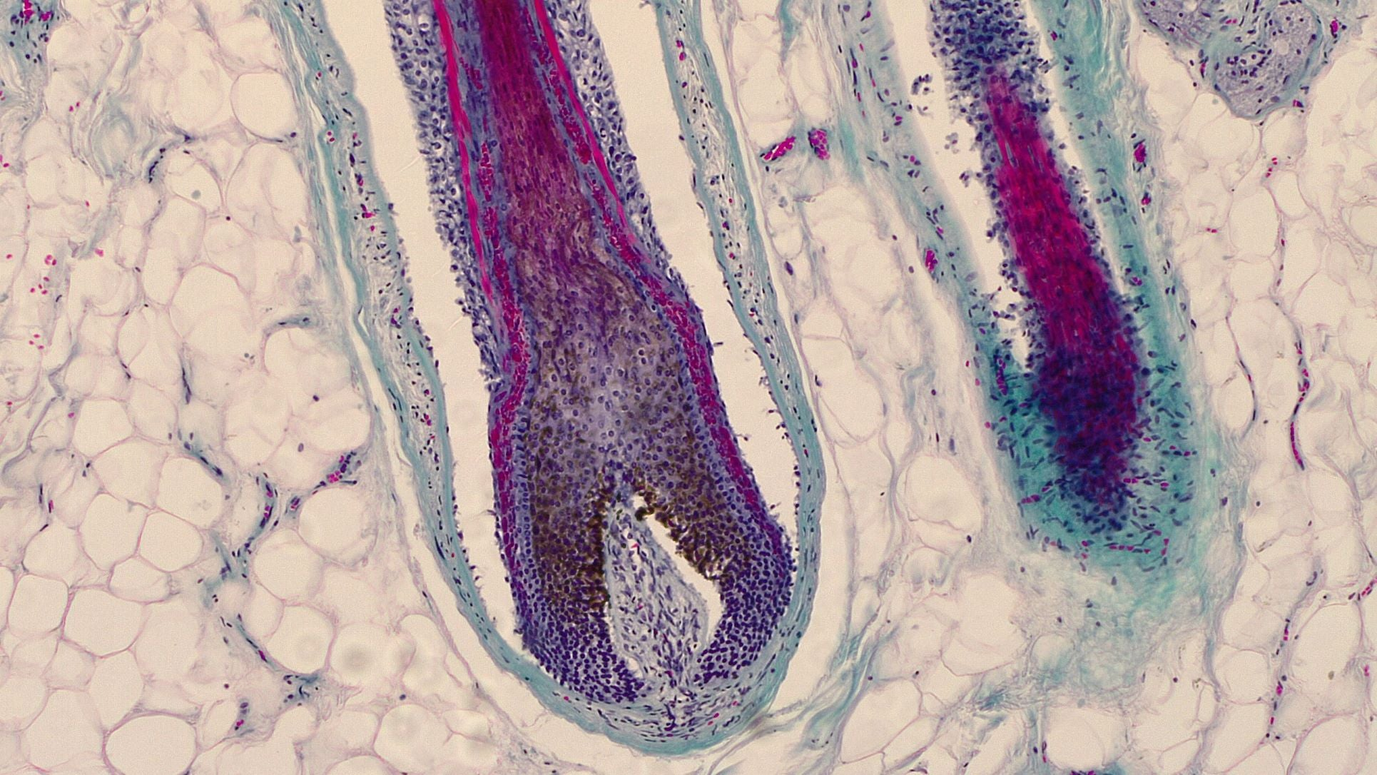 hair follicles affected by DHT