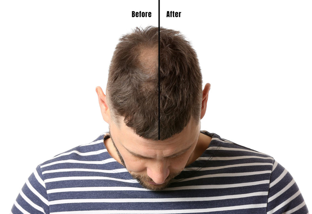 finasteride before and after