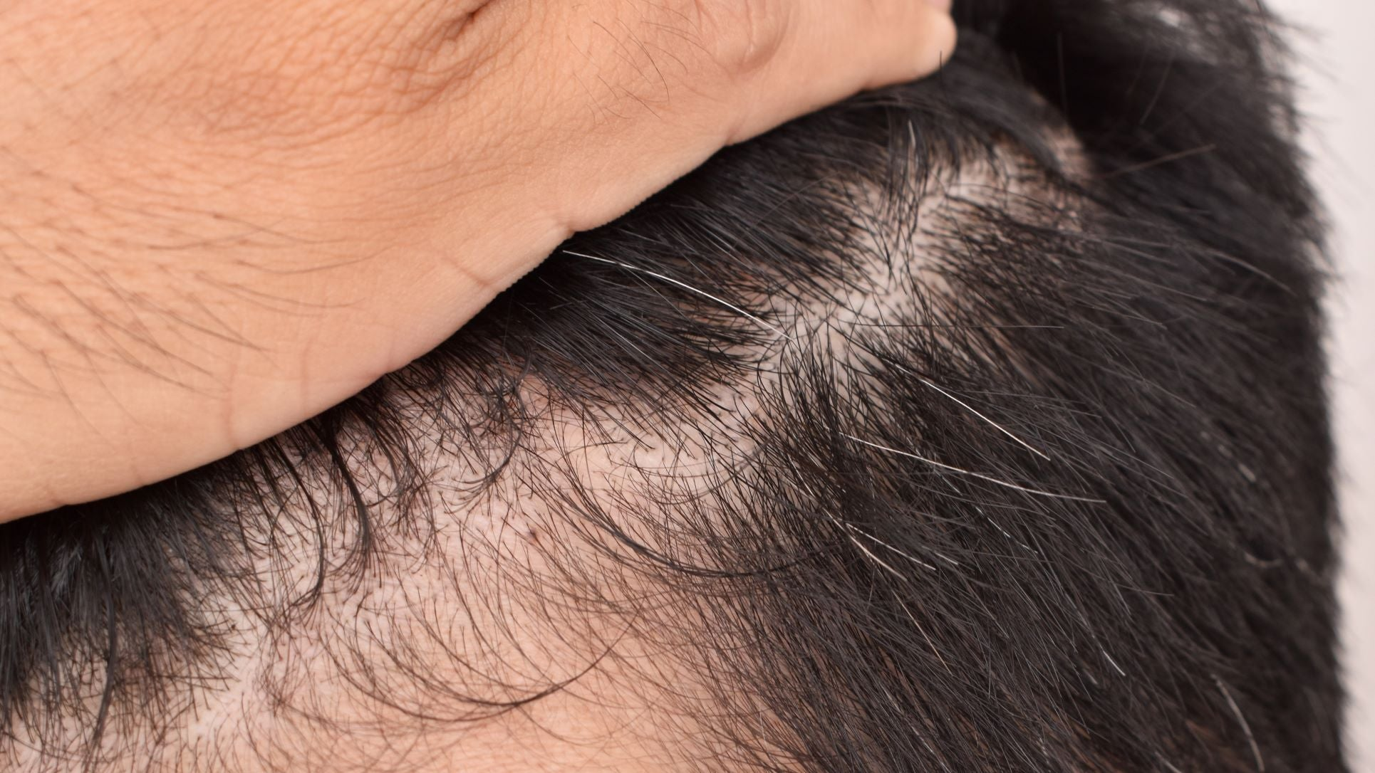 a guy affected from hair loss by dht