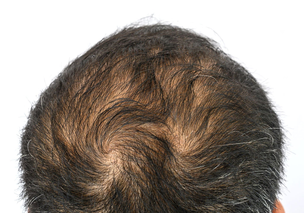 Double crown hair growth pattern