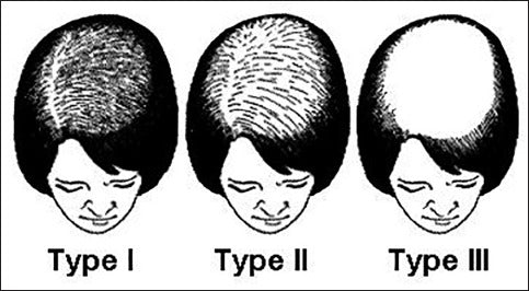 Ludwig scale of signs of balding in women
