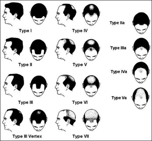 norwood scale of signs of balding in men