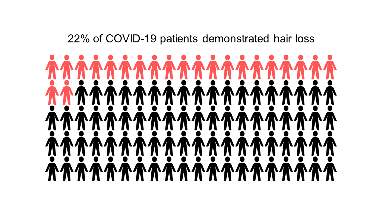 22% of covid-19 patients demonstrated hair loss