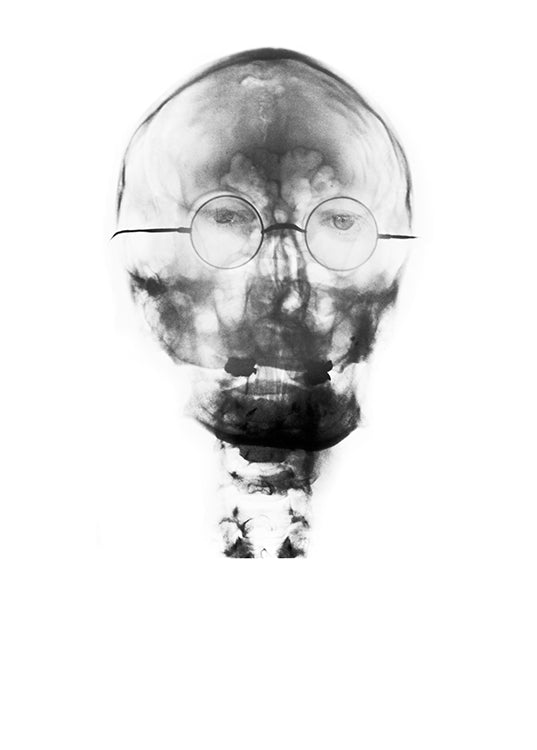 X-Ray of John Lennon's Skull
