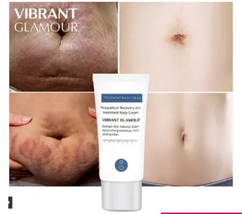 Vibrant Glamour Stretch Mark Cream
