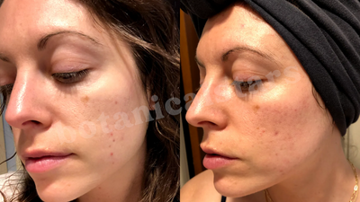 Erasing Scarring Formed Years Ago & Toning Oily/Acne-Prone Skin Easily