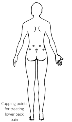 Trigger_point_back_pain_cupping_RnR