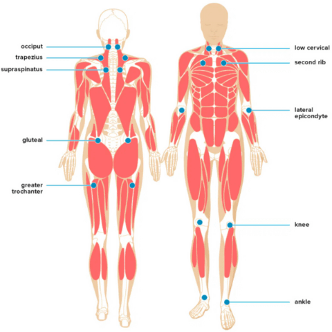 Myofascial-pain-syndrome-trigger-points-chart