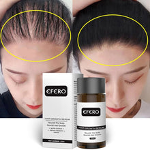 Load image into Gallery viewer, Hair Growth Essence Hair Loss Dense Hair Fast Hair Growth Oil Grow Restoration Growing Serum